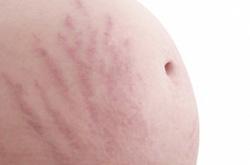 стрии (растяжки) на животе при беременности